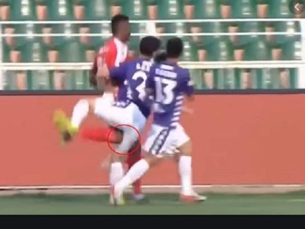 Tại sao các cầu thủ bị chấn thương dây chằng chéo?